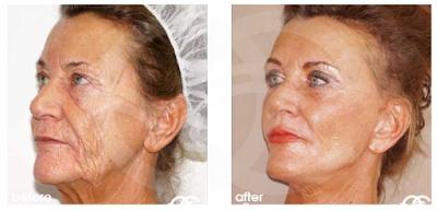Rejuvenecimiento facial - Labios finos | Tratamientos estéticos avanzados