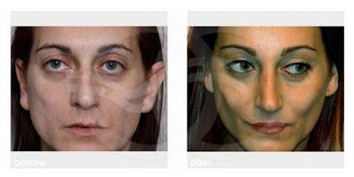 Rejuvenecimiento facial - Cara demacrada | Tratamientos estéticos avanzados