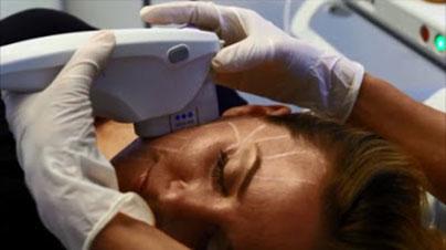 HIFU Ultrasonido focalizado de alta intensidad Marbella Madrid Ocean Clinic