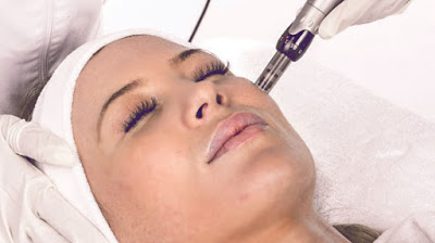 """Nanofat microneedling as part of a """"Fakelift"""""""