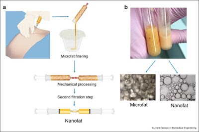 The nanofat is obtained by extracting fat from a donor site