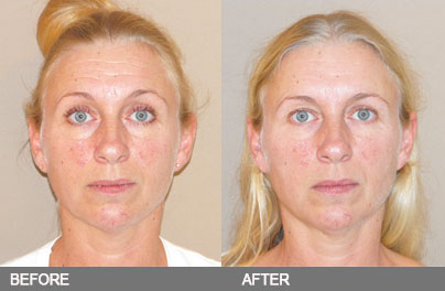 "Botox as part of a ""Fakelift"""