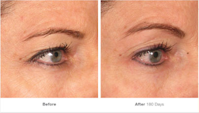 What's the difference between High Intensity Focused Ultrasound and Ultherapy? Ocean Clinic Marbella