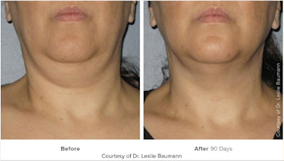 Are the results from Ulterapy permanent? Ocean Clinic Marbella