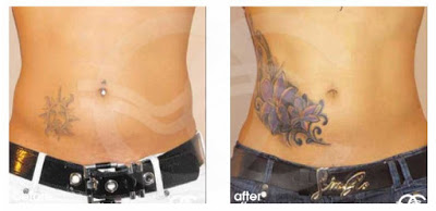 What type of liposuction does Ocean Clinic Marbella offer?