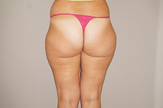 Liposuction for lipoedema before