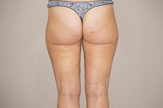 Liposuction for lipoedema after