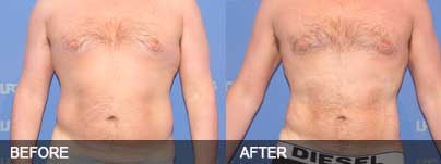 Before and after - Liposuction can reach the parts diet and exercise cannot