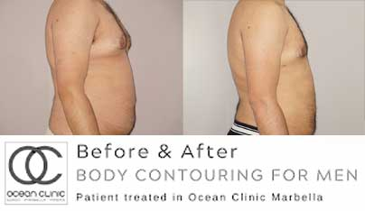 Before and after - Larger areas of fat can be tackled with liposuction