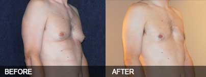 Before and after - Male breasts can be treated with liposuction
