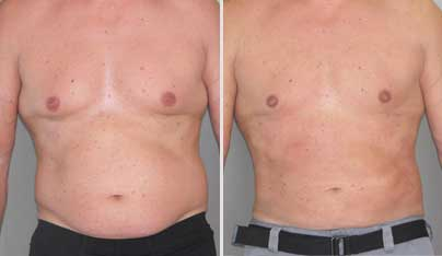 Liposuction for Men - 10 Facts