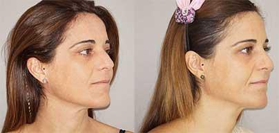 Micro Fat Transfer - Facial Fat Grafting Marbella Madrid Ocean Clinic