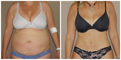 Mommy Makeover before and after Ocean Clinic Marbella