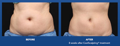 Best for fat loss: Coolsculpting - Non Surgical Body Treatments Marbella
