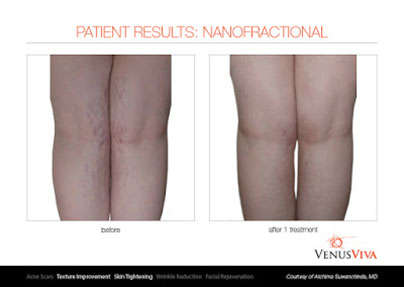 Best for stretch marks: Venus Viva & Dermapen 4 - Non Surgical Body Treatments Marbella