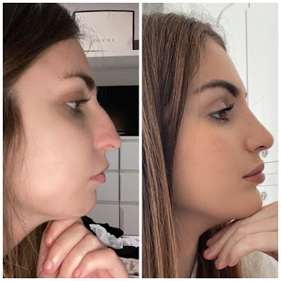 What's it Like to Have Profiloplasty (Rhinoplasty and a Chin Implant)?