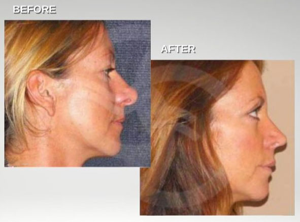 Nasal tip surgery deliver great aesthetic results. Rhinoplasty Ocean Clinic Marbella