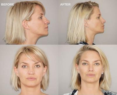 What is nasal tip surgery? Rhinoplasty Ocean Clinic Marbella