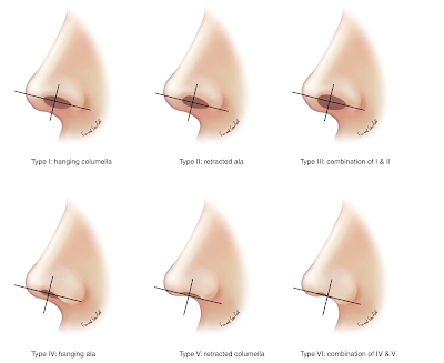 Who can benefit from nasal tip surgery? Rhinoplasty Ocean Clinic Marbella