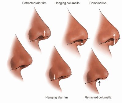 Nasal tip surgery for reshaping of nostrils. Rhinoplasty Ocean Clinic Marbella