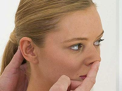 Rhinoplasty - Nasal tip surgery