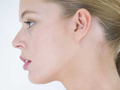 Will A Nose Job Change Your Life?