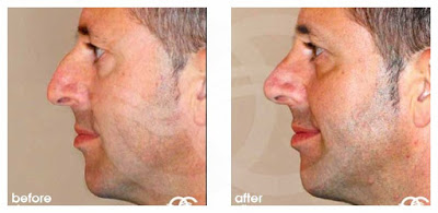 Rhinoplasty - If your nose is too big