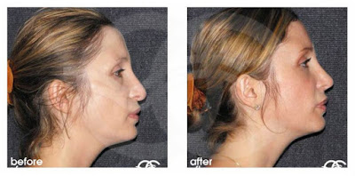 Rhinoplasty - If your nose is too long