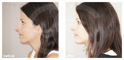 Rhinoplasty - If your nose is bumpy or wonky