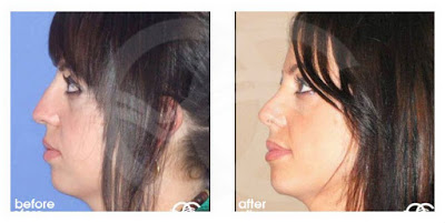 Rhinoplasty - learn about your options Marbella Madrid Ocean Clinic