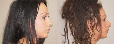Rhinoplasty before and after patient Ocean Clinic
