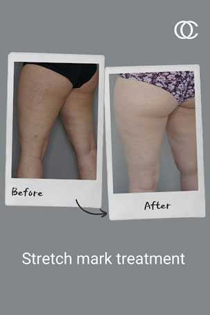 Stretch Mark Treatment - a new innovation in aesthetic medicine