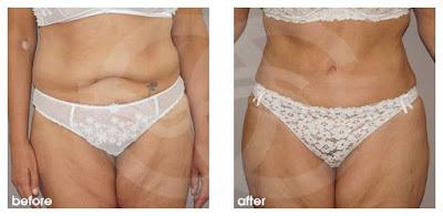 Tummy Tuck - Your age. Marbella Ocean Clinic