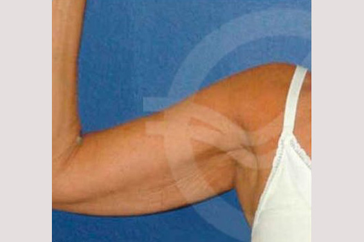 Arm Lift Liposuction Upper Arm before forntal