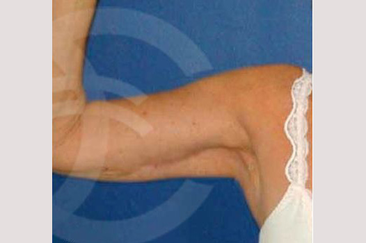 Arm Lift Liposuction Upper Arm after frontal