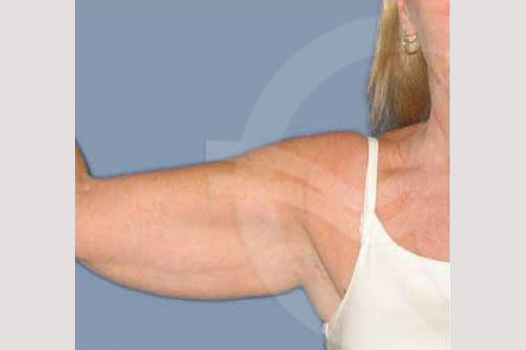 Arm Lift Upper arms before forntal