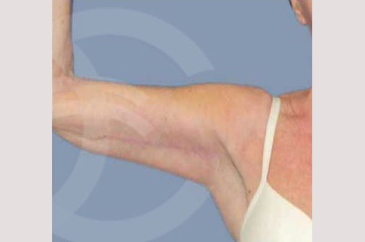 Arm Lift Upper arms after frontal