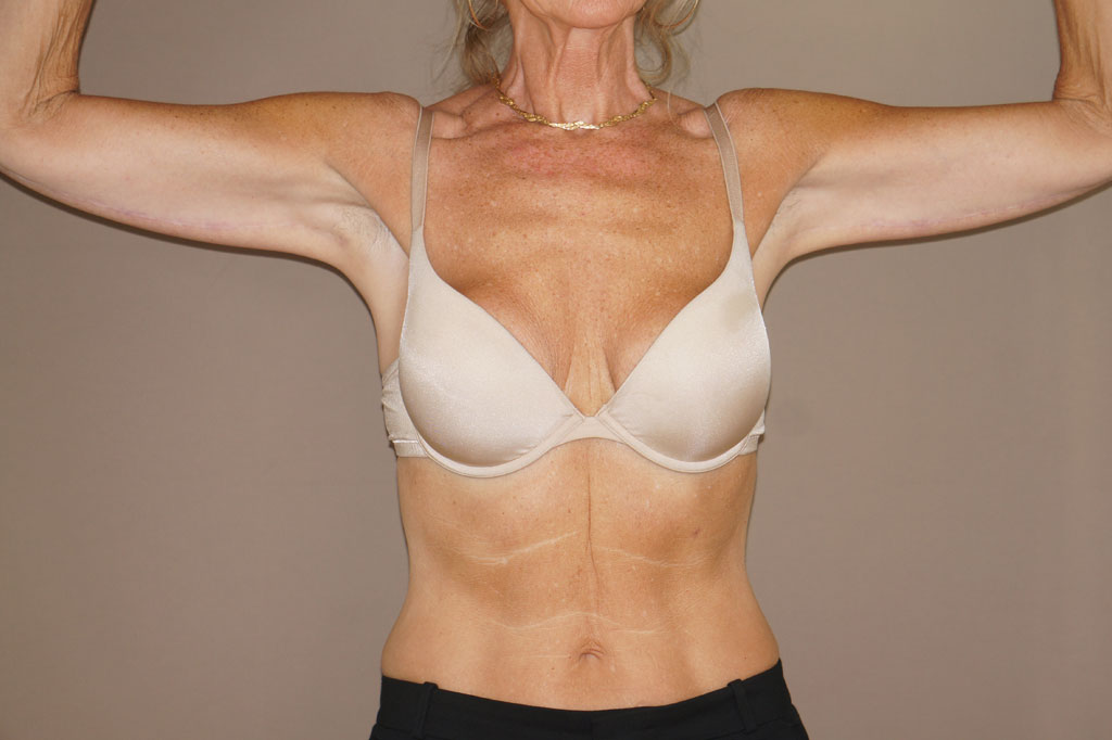 Arm Lift Upper Armlift ante-op profil