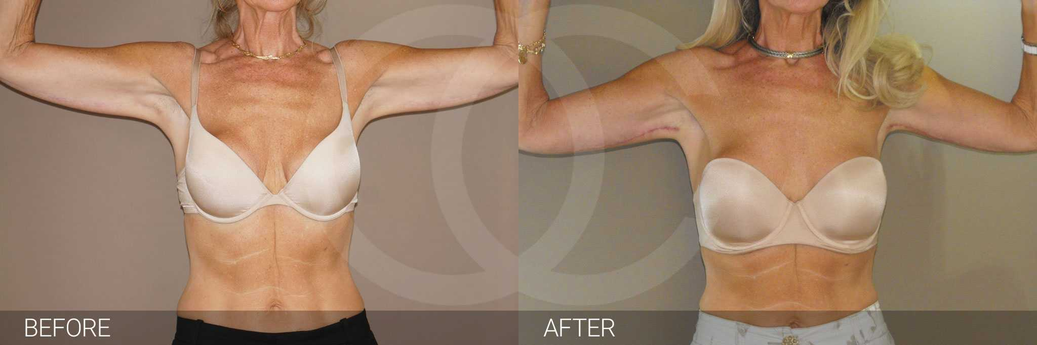 Arm Lift Upper Armlift ante/post-op I