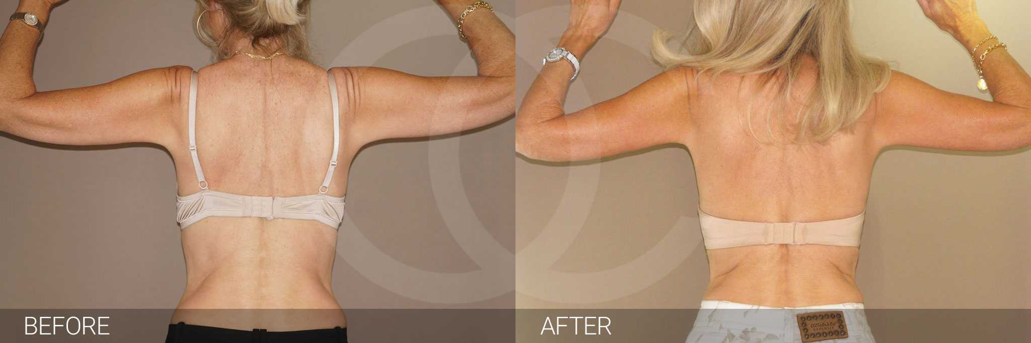 Arm Lift Upper Armlift ante/post-op II