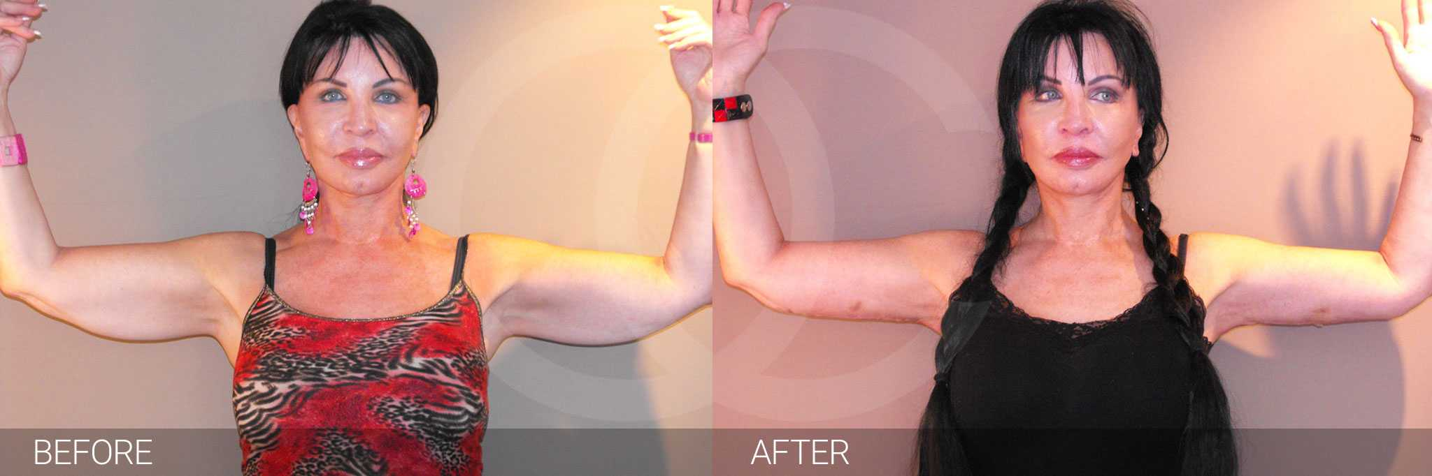 Arm Lift Reshape Upper Arms ante/post-op I