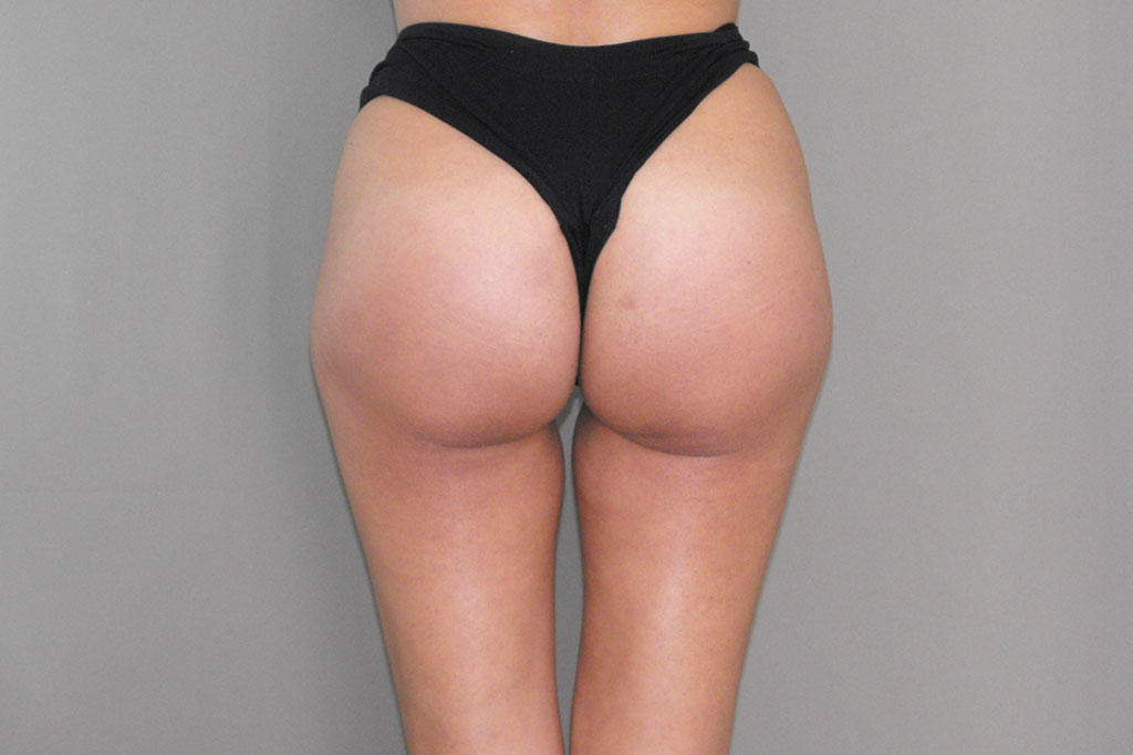 Buttock Augmentation GLUTEAL IMPLANTS after frontal
