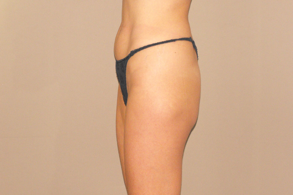 Buttock Augmentation GLUTEAL IMPLANTS before side