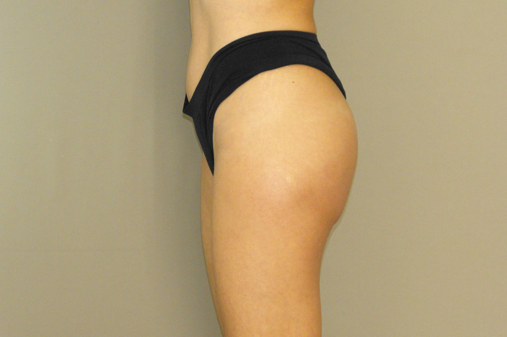 Buttock Augmentation GLUTEAL IMPLANTS after side