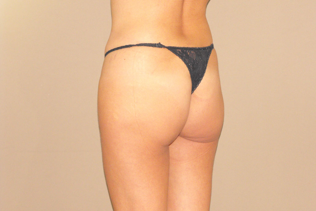 Buttock Augmentation GLUTEAL IMPLANTS before profile