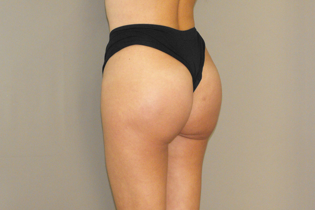Buttock Augmentation GLUTEAL IMPLANTS after profile