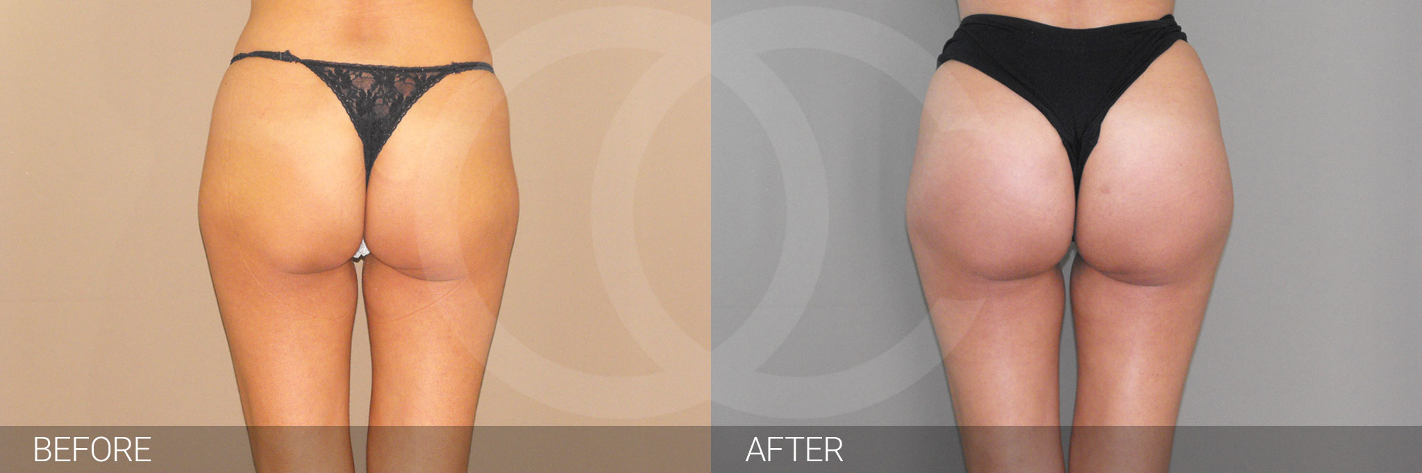 Buttock Augmentation GLUTEAL IMPLANTS ante/post-op I