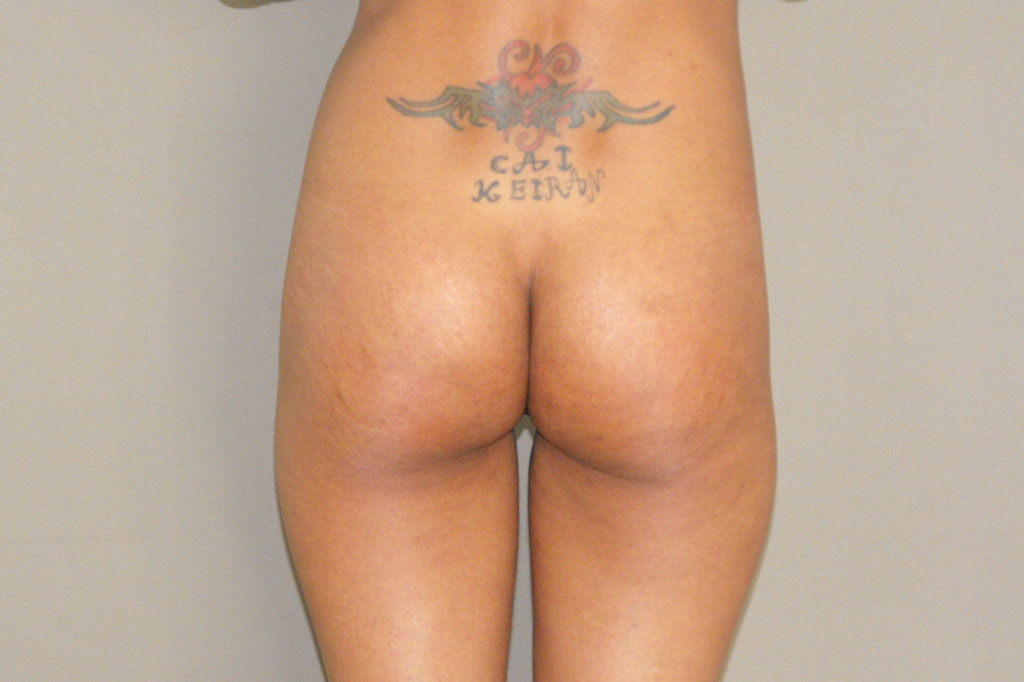 Buttock Augmentation BUTT UPLIFT before forntal