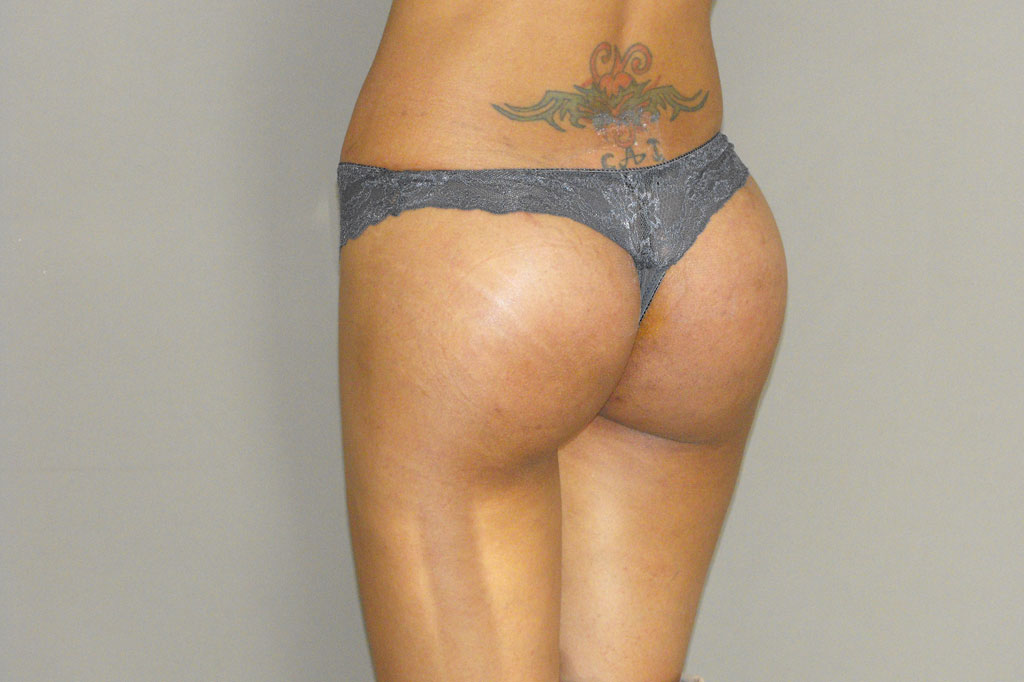 Augmentation des Fesses 2 post-op lateral
