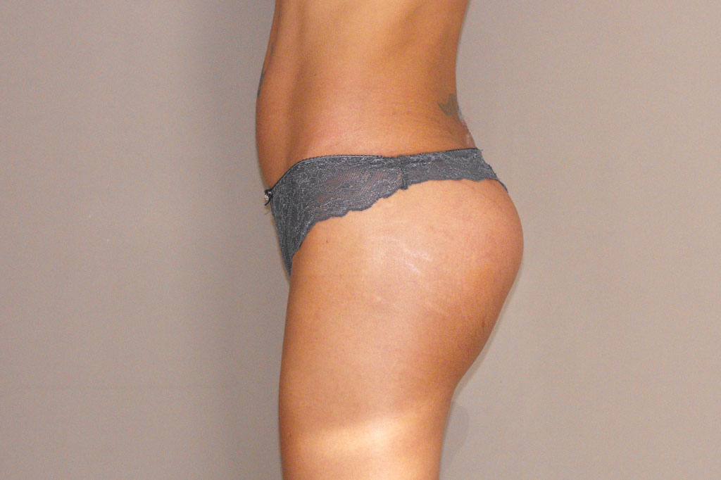 Augmentation des Fesses 2 post-op retro/lateral